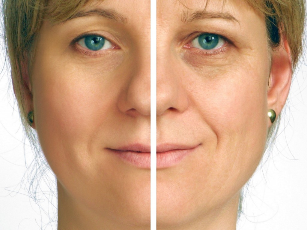 Correction of wrinkles on half of face